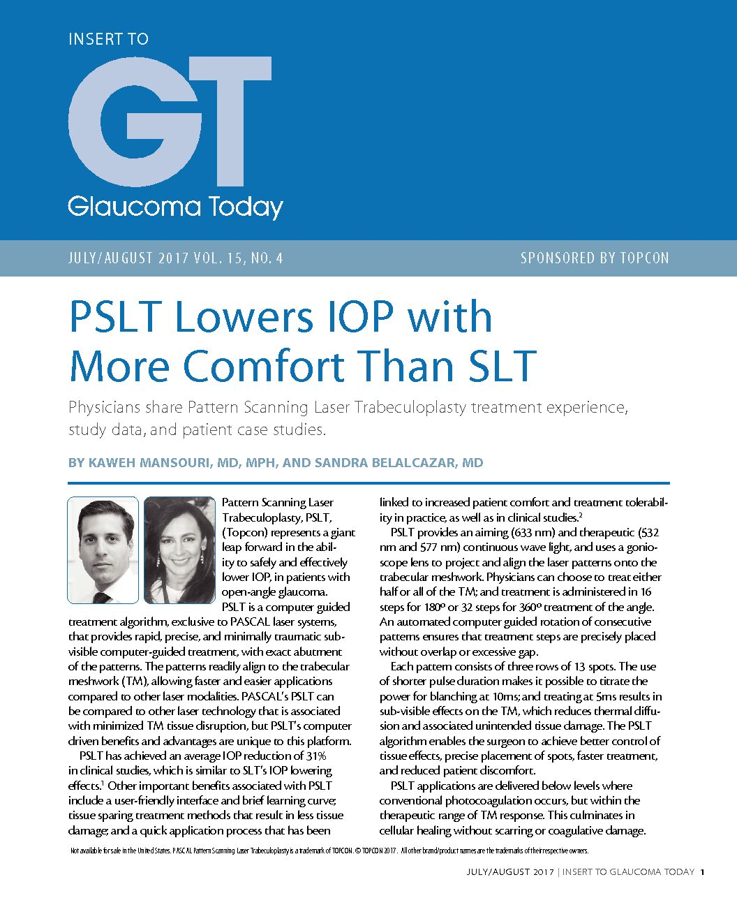 PSLT Lowers IOP with More Comfort Than SLT