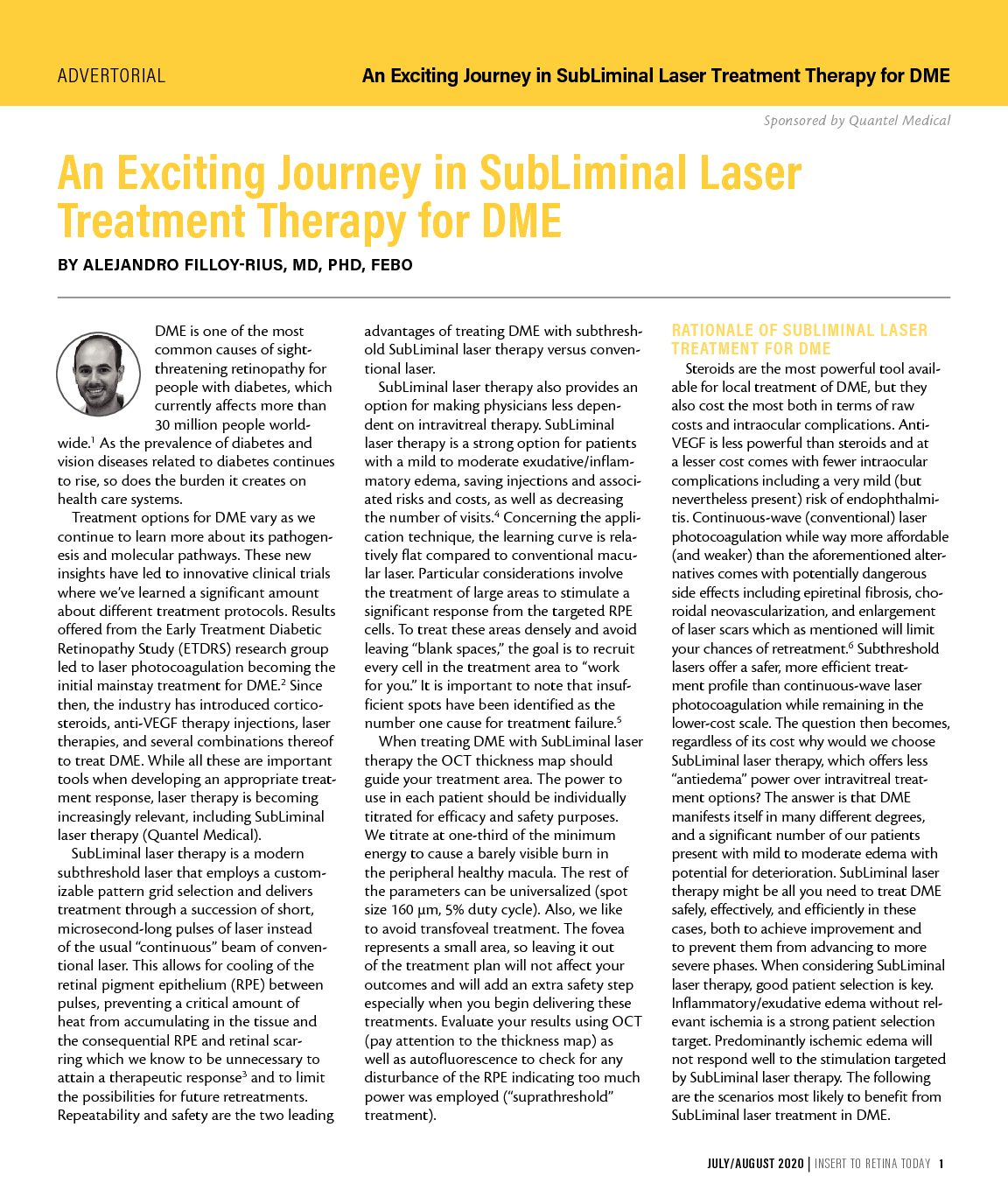 An Exciting Journey in SubLiminal Laser Treatment Therapy for DME