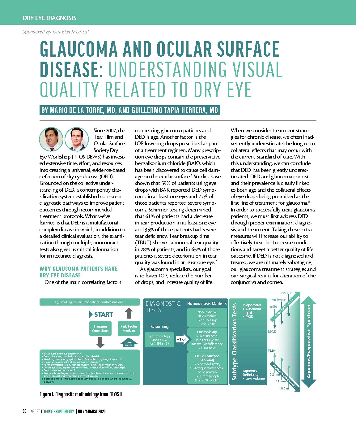 Glaucoma and Ocular Surface Disease